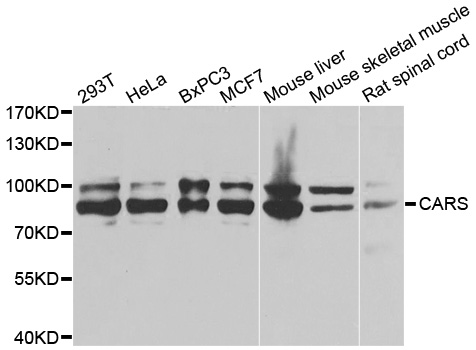 Western blot analysis of extracts of various cell lines, using CARS antibody.