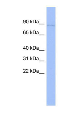 CARS antibody Western blot of THP-1 cell lysate. This image was taken for the unconjugated form of this product. Other forms have not been tested.