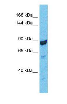 CASK Antibody - Western blot of CSKP Antibody with human COLO205 Whole Cell lysate.  This image was taken for the unconjugated form of this product. Other forms have not been tested.