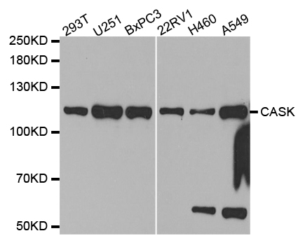 CASK Antibody - Western blot analysis of extracts of various cell lines.