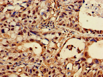 CASK Antibody - Immunohistochemistry of paraffin-embedded human lung cancer using CASK Antibody at dilution of 1:100