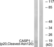 Western blot of extracts from rat eye cells, using Caspase 1 (p20, Cleaved-Asn120) Antibody. The lane on the right is treated with the synthesized peptide.
