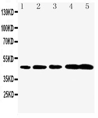 Caspase-1(P20) antibody Western blot. Lane 1: Rat Brain Tissue Lysate. Lane 2: Rat Spleen Tissue Lysate. Lane 3: Mouse Brain Tissue Lysate. Lane 4: Mouse Spleen Tissue Lysate. Lane 5: Mouse Testis Tissue Lysate.