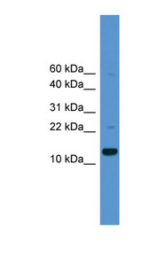 CASP1 / Caspase 1 antibody Western blot of 721_B cell lysate. This image was taken for the unconjugated form of this product. Other forms have not been tested.