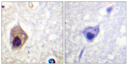 Immunohistochemistry analysis of paraffin-embedded human brain tissue, using Caspase 1 Antibody. The picture on the right is blocked with the synthesized peptide.