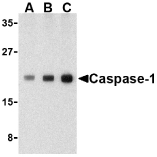 Western blot of caspase-1 in human heart cell lysate with caspase-1 antibody at (A) 0.5, (B) 1, and (C) 2 ug/ml.