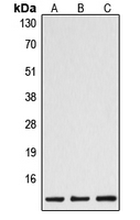 Western blot analysis of Caspase 1 p10 expression in HeLa (A); mouse spleen (B); rat spleen (C) whole cell lysates.