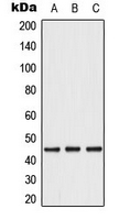 Western blot analysis of Caspase 1 expression in A549 (A); Caco2 (B); THP1 (C) whole cell lysates.