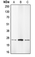 Western blot analysis of Caspase 1 expression in THP1 (A); HL60 (B); BAEC (C) whole cell lysates.