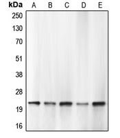 Western blot analysis of Caspase 1 expression in HEK293T PMA-treated (A); THP1 (B); HL60 (C); mouse lung (D); rat lung (E) whole cell lysates.