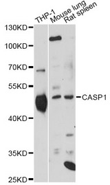 Western blot analysis of extracts of various cell lines, using CASP1 antibody at 1:1000 dilution. The secondary antibody used was an HRP Goat Anti-Rabbit IgG (H+L) at 1:10000 dilution. Lysates were loaded 25ug per lane and 3% nonfat dry milk in TBST was used for blocking. An ECL Kit was used for detection and the exposure time was 30s.