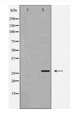 Western blot of Caspase 1 expression in 293 cells