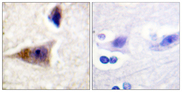 Immunohistochemistry analysis of paraffin-embedded human brain, using Caspase 1 (Phospho-Ser376) Antibody. The picture on the right is blocked with the phospho peptide.