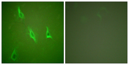 Immunofluorescence analysis of HeLa cells, using Caspase 10 Antibody. The picture on the right is blocked with the synthesized peptide.