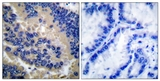 IHC of paraffin-embedded human lung carcinoma tissue, using Caspase 3 (Cleaved-Asp175) Antibody. The picture on the right is treated with the synthesized peptide.