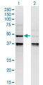 Western Blot analysis of CASP4 expression in transfected 293T cell line by CASP4 monoclonal antibody (M02), clone 7G7.Lane 1: CASP4 transfected lysate (Predicted MW: 43.3 KDa).Lane 2: Non-transfected lysate.