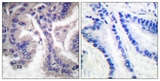 IHC of paraffin-embedded human lung carcinoma tissue, using Caspase 6 (Cleaved-Asp162) Antibody. The picture on the right is treated with the synthesized peptide.