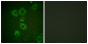 Immunofluorescence analysis of HUVEC cells, using Caspase 6 Antibody. The picture on the right is blocked with the synthesized peptide.