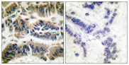 Immunohistochemistry analysis of paraffin-embedded human breast carcinoma tissue, using Caspase 6 Antibody. The picture on the right is blocked with the synthesized peptide.