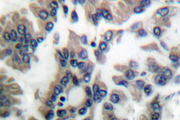 IHC of Caspase-6 (L251) pAb pAb in paraffin-embedded human lung carcinoma.