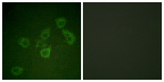 Immunofluorescence analysis of HUVEC cells, using Caspase 6 (Phospho-Ser257) Antibody. The picture on the right is blocked with the phospho peptide.