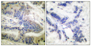 Immunohistochemistry analysis of paraffin-embedded human colon carcinoma, using Caspase 6 (Phospho-Ser257) Antibody. The picture on the right is blocked with the phospho peptide.