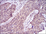 Immunohistochemical analysis of paraffin-embedded cervical cancer tissues using CASP-7 mouse mAb with DAB staining.