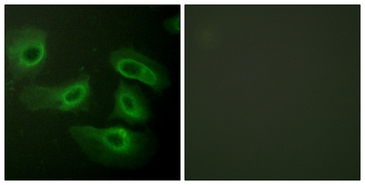 Immunofluorescence analysis of HeLa cells, using Caspase 9 Antibody. The picture on the right is blocked with the synthesized peptide.