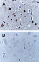 CASP9 / Caspase 9 Antibody - Formalin-fixed, paraffin-embedded human brain sections stained for cleaved Caspase-9 expression using Polyclonal Antibody to (Active) Cleaved Caspase-9 antibody at 1:2000. A. Section from a patient 24 hr after head trauma. B. Control: section from a patient with no known neurological disease or head injury. Hematoxylin-Eos in counterstain.