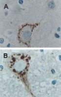 CASP9 / Caspase 9 Antibody - IHC of Caspase-9 expression in formalin-fixed, paraffin-embedded mouse brain tissue sections using Polyclonal Antibody to Caspase-9 at 1:2000. Hematoxylin-Eosin counterstain. A: Brain striatum. B: Brain stem motor neuron.