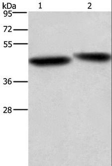 CASP9 / Caspase 9 Antibody - Western blot analysis of HeLa cell and mouse liver tissue, using CASP9 Polyclonal Antibody at dilution of 1:750.
