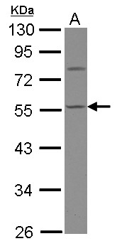 Sample (30 ug of whole cell lysate) A: HepG2 10% SDS PAGE CASQ1 antibody diluted at 1:1000