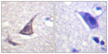 Immunohistochemistry analysis of paraffin-embedded human brain tissue, using Calcium Sensing Receptor Antibody. The picture on the right is blocked with the synthesized peptide.