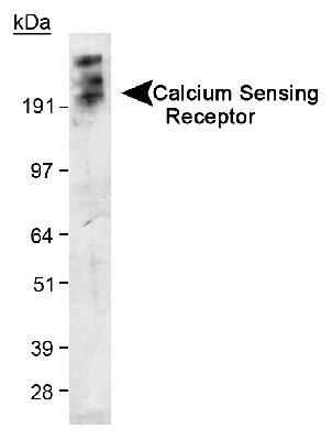 Detection of Calcium Sensing Receptor in transfected 293 cell lysate. ECL exposure, 5 minutes. In this photo, the protein has aggregated and thus the higher MW band as expected.  This image was taken for the unconjugated form of this product. Other forms have not been tested.