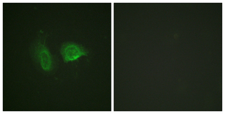 Immunofluorescence analysis of HeLa cells, using Calcium Sensing Receptor (Phospho-Thr888) Antibody. The picture on the right is blocked with the phospho peptide.