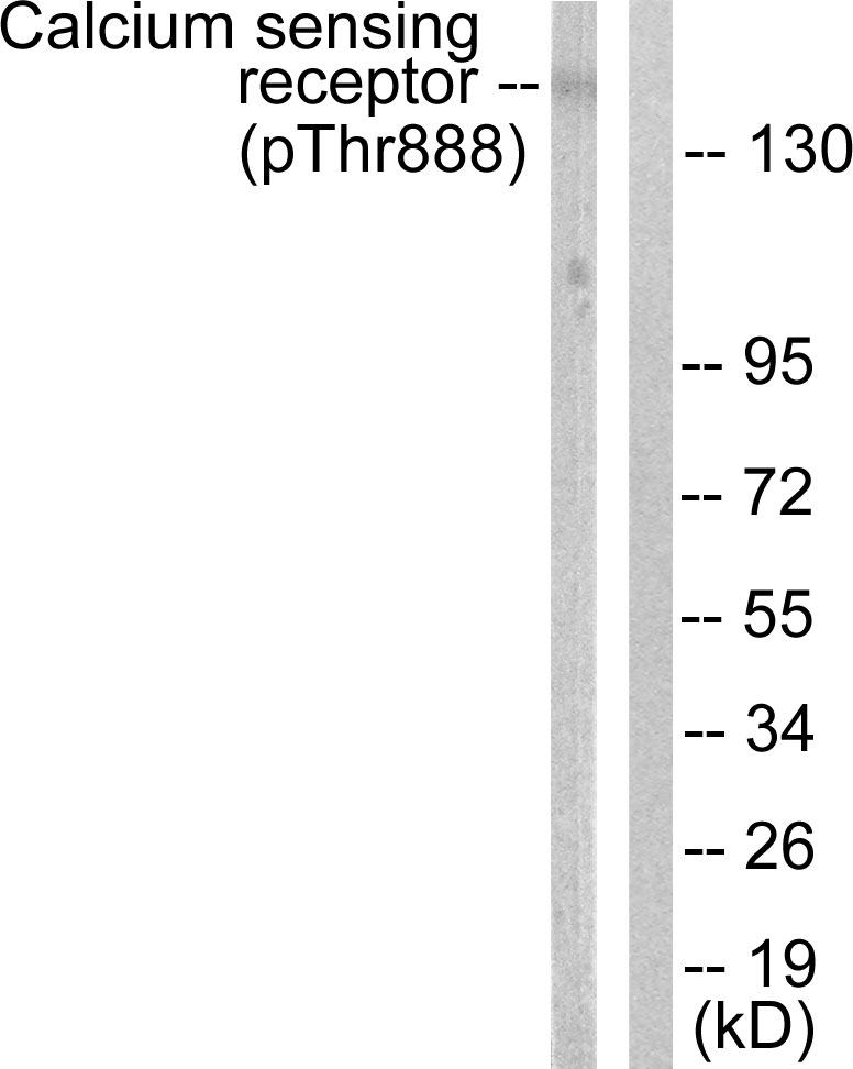 Western blot analysis of lysates from LOVO cells, using Calcium Sensing Receptor (Phospho-Thr888) Antibody. The lane on the right is blocked with the phospho peptide.