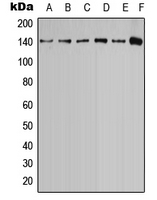 Western blot analysis of Calcium Sensing Receptor (pT888) expression in MCF7 (A); MDCK (B); U2OS (C); SP2/0 (D); PC12 (E); rat brain (F) whole cell lysates.