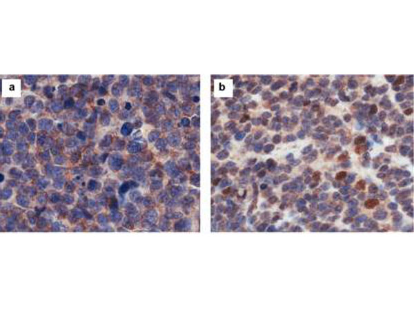 CASZ1 Antibody - Immunohistochemistry results of rabbit Anti-hCASZ1 Antibody. Tissue: NB patient tumor. A. Score 0- a rare positive nuclei. B. Score 1- (1-10% positive) equivocal/uninterpretable. C. Score 2- (10-50% positive) weak positive. D. Score 3- (>50% positive) strong positive. Primary Antibody: Rabbit Anti-CASZ1 stained brown. Nucleus counterstained with hematoxylin (blue). Localization: Nuclear.