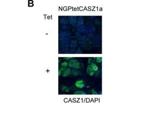 CASZ1 Antibody - Immunofluorescence results of rabbit Anti-CASZ1 Antibody. Tissue: Mouse Xenograft tumor of human NB cell line transfected with or without tetracycline inducible CASZ1 (NGPtetCASZ1a). Antibody: Rabbit Anti-CASZ1 Antibody. Counterstain: DAPI.