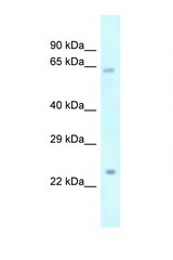 Catip / Gm216 Antibody - Gm216 antibody Western blot of Mouse Pancreas lysate. Antibody concentration 1 ug/ml.  This image was taken for the unconjugated form of this product. Other forms have not been tested.