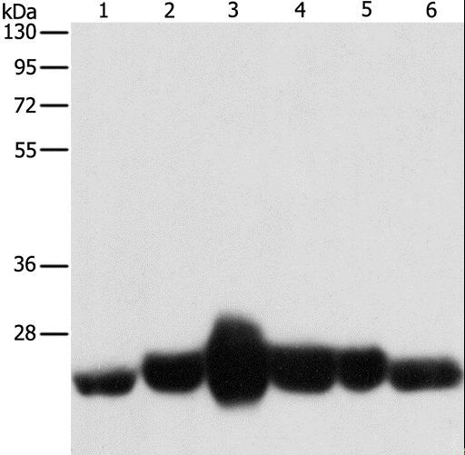 CAV1 / Caveolin 1 Antibody - Western blot analysis of Human fetal muscle and fetal lung tissue, Human leiomyosarcoma tissue, mouse lung and heart tissue, NIH/3T3 cell, using CAV1 Polyclonal Antibody at dilution of 1:550.