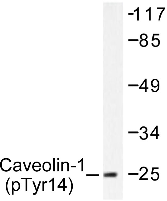 Western blot of p-Caveolin-1 (Y14) pAb in extracts from SW626 cells.