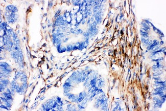 Caveolin-2 antibody IHC-paraffin: Human Intestinal Cancer Tissue.