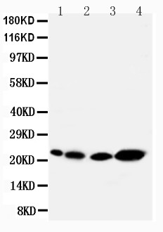 WB of CAV2 / Caveolin 2 antibody. All lanes: Anti-CAV2 at 0.5ug/ml. Lane 1: Rat Heart Tissue Lysate at 40ug. Lane 2: Rat lung Tissue Lysate at 40ug. Lane 3: HELA Whole Cell Lysate at 40ug. Lane 4: A431 Whole Cell Lysate at 40ug. Predicted bind size: 17KD. Observed bind size: 22KD.