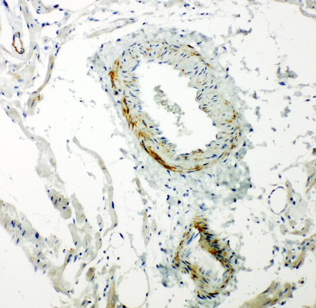 CAV2 / Caveolin 2 antibody. IHC(P): Rat Cardiac Muscle Tissue.