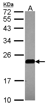 Sample (30 ug of whole cell lysate). A: A549. 12% SDS PAGE. CAV2 / Caveolin 2 antibody diluted at 1:1000.