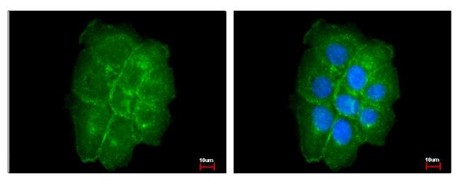 Caveolin 2 antibody detects CAV2 protein at Membrane by immunofluorescent analysis. A431 cells were fixed in 4% paraformaldehyde at RT for 15 min. CAV2 protein stained by Caveolin 2 antibody diluted at 1:200.