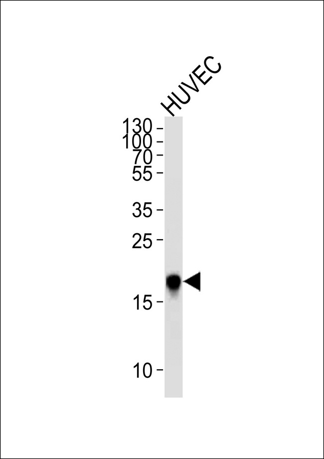 Western blot of lysate from HUVEC cell line,using CAV2 Antibody. Antibody was diluted at 1:1000 at each lane. A goat anti-rabbit IgG H&L (HRP) at 1:5000 dilution was used as the secondary antibody.Lysate at 35ug per lane.