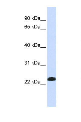 CAV2 / Caveolin 2 antibody LS-C102834 Western blot of Fetal Lung lysate. Antibody concentration 1 ug/ml.  This image was taken for the unconjugated form of this product. Other forms have not been tested.
