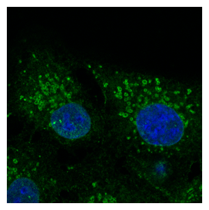 Immunofluorescence - anti-CAV2 Ab - Caveolae Marker at 1:100 dilution in NHI:3T3 cells; cells were fixed with methanol and permeabilized with 0.1% saponin;